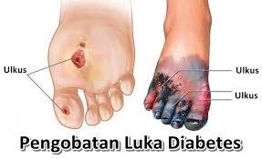 Cara Mengobati Luka Diabetes ( Luka Gangren ) dan Diabetes nya Secara Alami